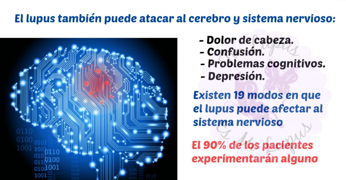 Cómo el lupus afecta al cerebro: dolor de cabeza, hormigueos ...