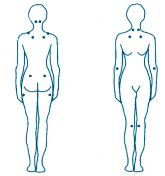 Puntos de dolor fibromialgia