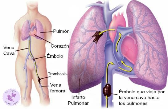 La trombosis de las venas profundas de las extremidades inferiores ksarelto