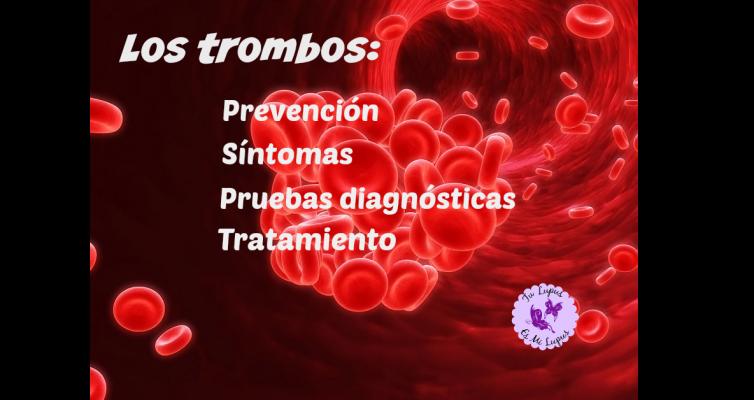 Los trombos